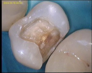 symptômes d'une carie dentaire