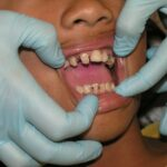 Les conseils pour le traitement des mucosités péri-implantaires